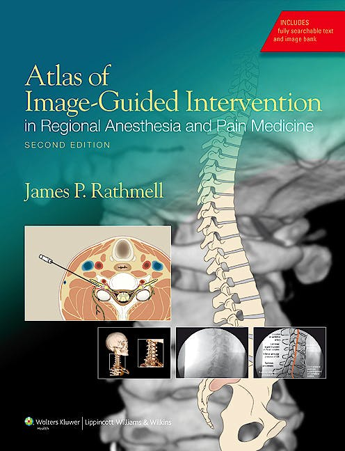 Portada del libro 9781608317042 Atlas of Image-Guided Intervention in Regional Anesthesia and Pain Medicine