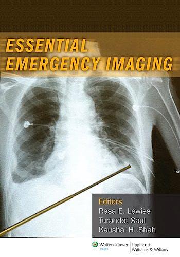 Portada del libro 9781608318933 Essential Emergency Imaging