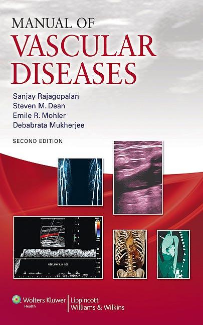 Portada del libro 9781609134228 Manual of Vascular Diseases
