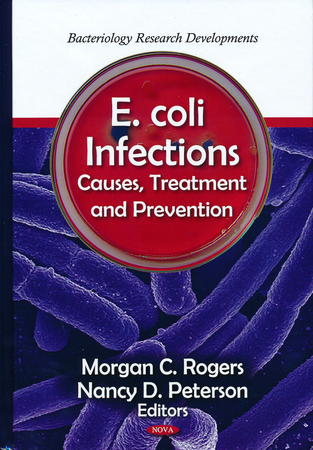 Portada del libro 9781611228595 E. Coli Infections. Causes, Treatment and Prevention - Bacteriology Research Developments
