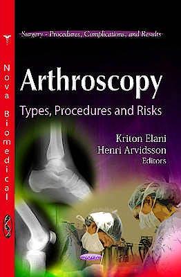 Portada del libro 9781614709558 Arthroscopy. Types, Procedures and Risks (Surgery - Procedures, Complications, and Results)