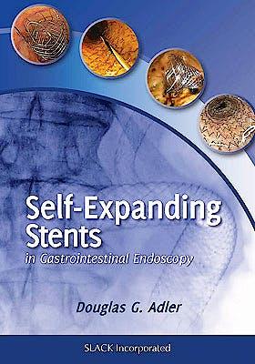 Portada del libro 9781617110283 Self-Expanding Stents in Gastrointestinal Endoscopy