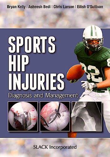 Portada del libro 9781617110467 Sports Hip Injuries. Diagnosis and Management