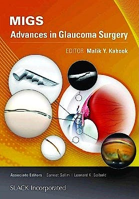 Portada del libro 9781617116001 Migs. Advances in Glaucoma Surgery