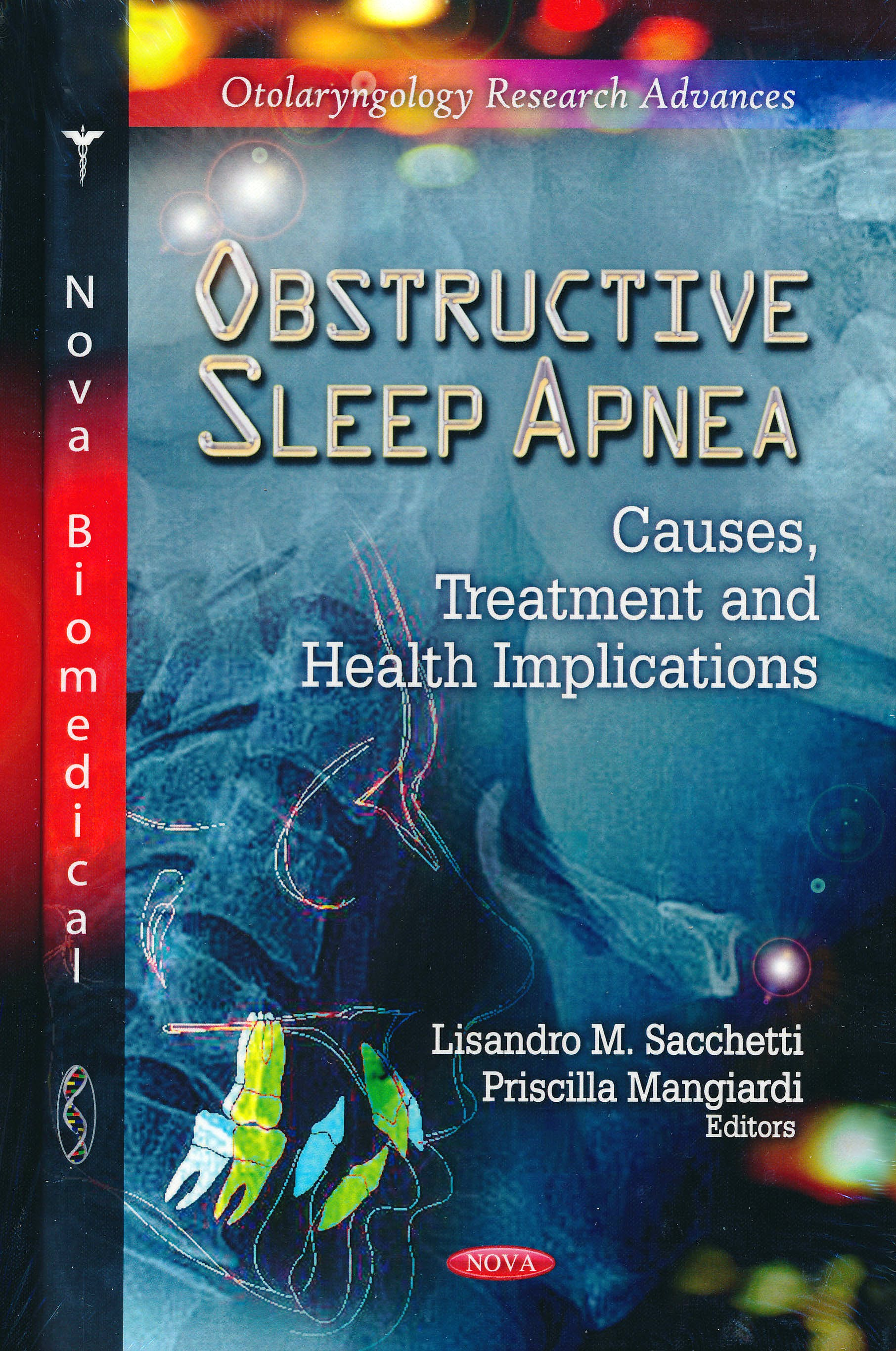 Portada del libro 9781619426764 Obstructive Sleep Apnea: Causes, Treatment and Health Implications