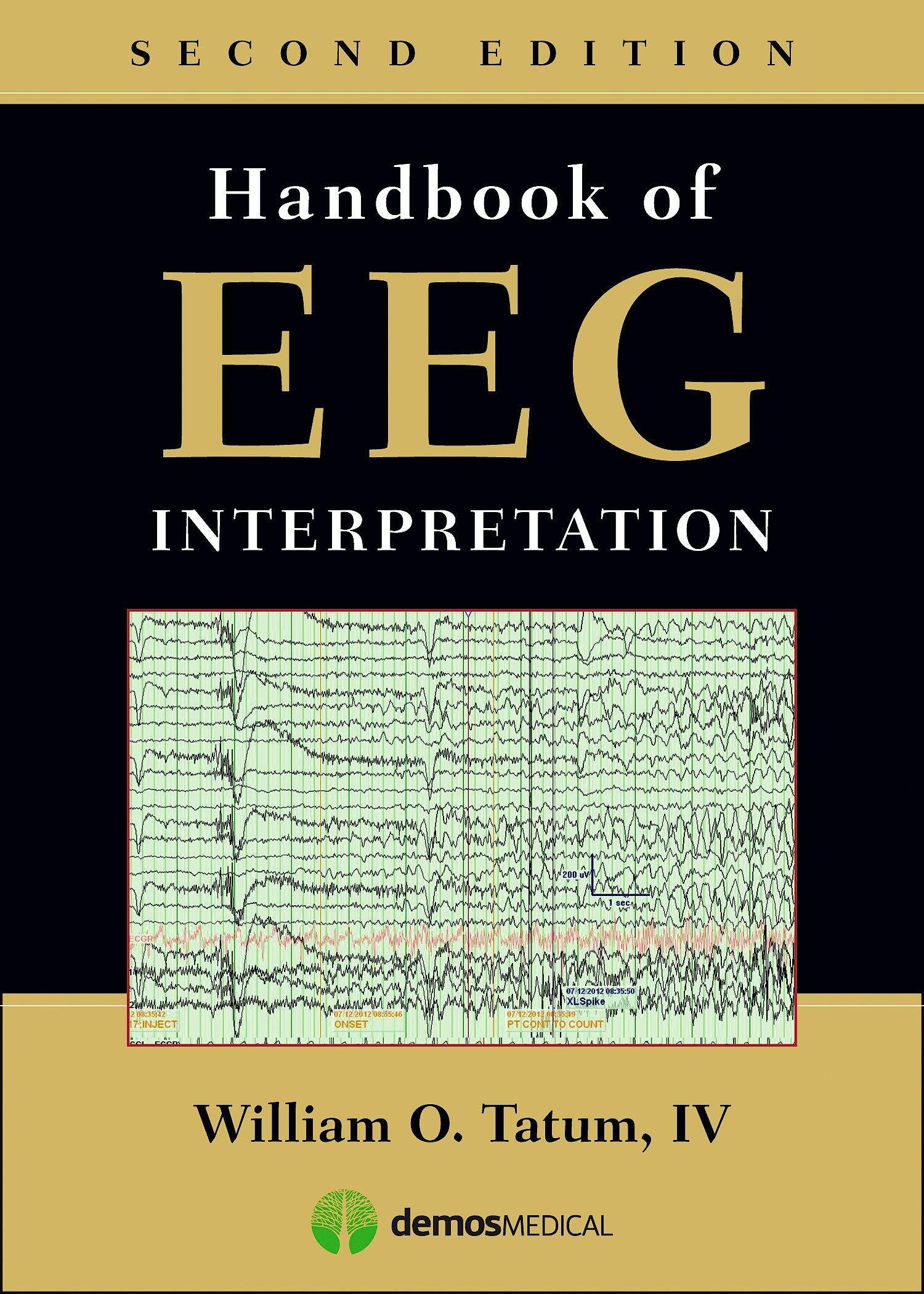 Portada del libro 9781620700167 Handbook of EEG Interpretation
