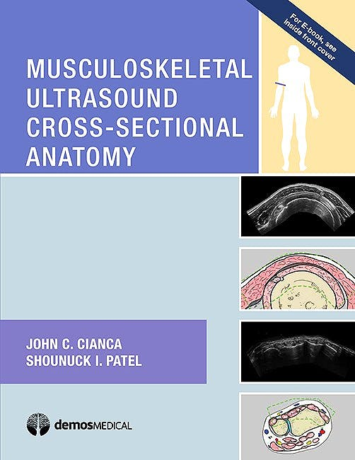 Portada del libro 9781620700624 Musculoskeletal Ultrasound Cross-Sectional Anatomy
