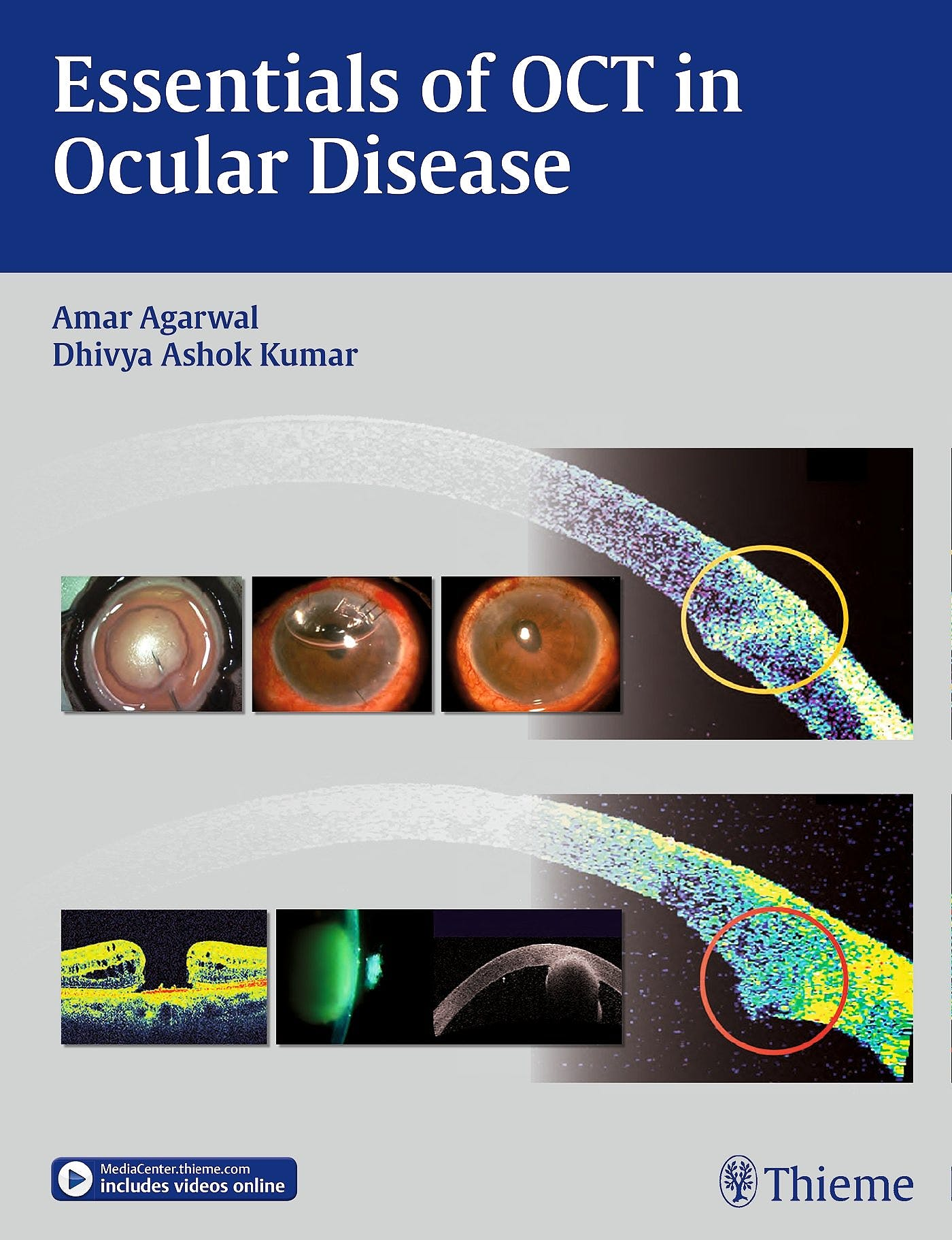 Portada del libro 9781626230989 Essentials of Oct in Ocular Disease