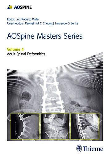 Portada del libro 9781626231009 AOSpine Masters Series, Vol. 4: Adult Spinal Deformities