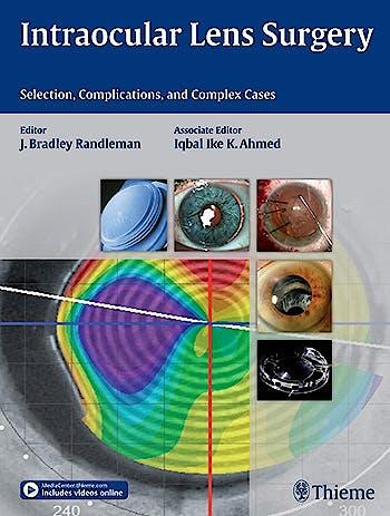 Portada del libro 9781626231146 Intraocular Lens Surgery. Selection, Complications and Complex Cases