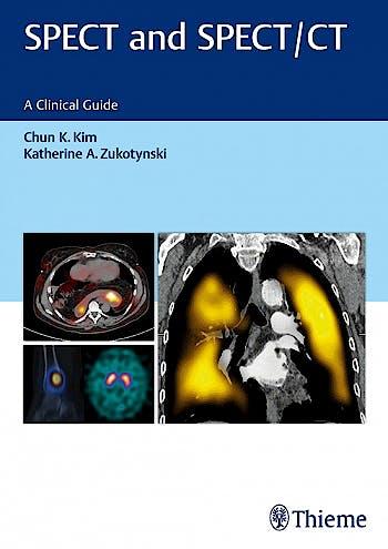 Portada del libro 9781626231511 Spect and Spect/ct. a Clinical Guide