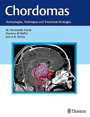 Portada del libro 9781626231597 Chordomas. Technologies, Techniques, and Treatment Strategies