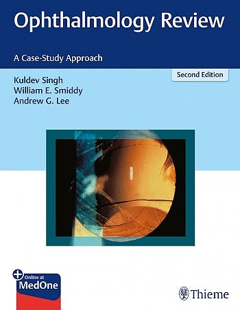 Portada del libro 9781626231764 Ophthalmology Review. A Case-Study Approach + Online at MedOne