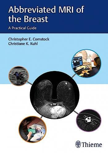 Portada del libro 9781626231931 Abbreviated MRI of the Breast. A Practical Guide