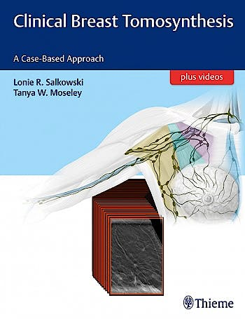 Portada del libro 9781626232082 Clinical Breast Tomosynthesis. A Case-Based Approach + Videos Online