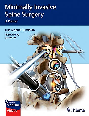 Portada del libro 9781626232181 Minimally Invasive Spine Surgery. A Primer
