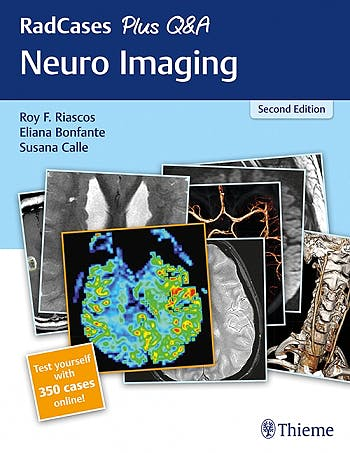 Portada del libro 9781626232372 Neuro Imaging (RadCases Plus Q&A) + 350 Cases Online