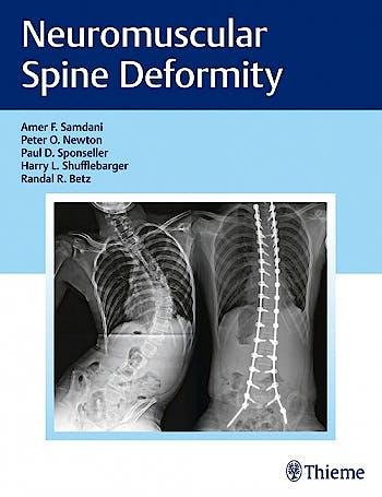 Portada del libro 9781626232600 Neuromuscular Spine Deformity