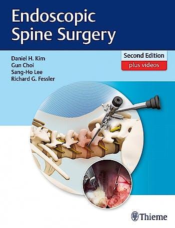 Portada del libro 9781626232648 Endoscopic Spine Surgery + Videos Online