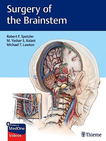 Portada del libro 9781626232914 Surgery of the Brainstem