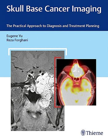 Portada del libro 9781626232969 Skull Base Cancer Imaging. The Practical Approach to Diagnosis and Treatment Planning