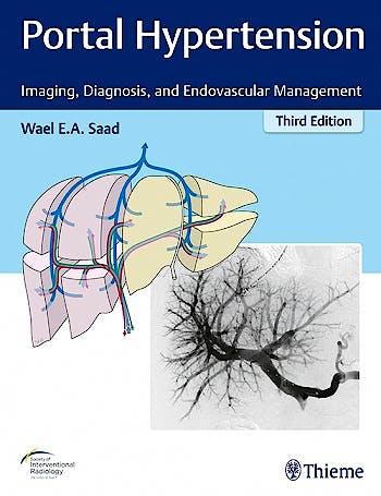 Portada del libro 9781626233270 Portal Hypertension. Imaging, Diagnosis and Endovascular Management