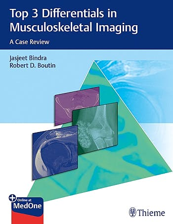 Portada del libro 9781626233485 Top 3 Differentials in Musculoskeletal Imaging. A Case Review