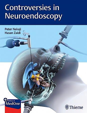 Portada del libro 9781626233539 Controversies in Neuroendoscopy