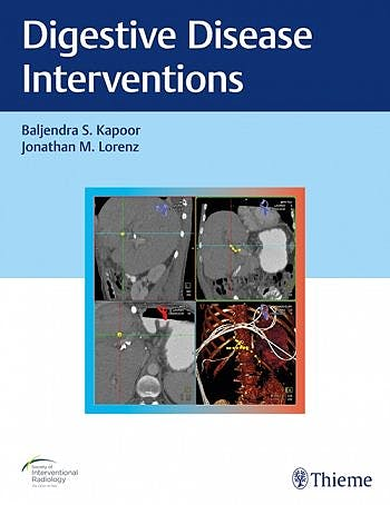 Portada del libro 9781626233744 Digestive Disease Interventions