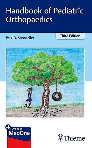 Portada del libro 9781626234314 Handbook of Pediatric Orthopaedics