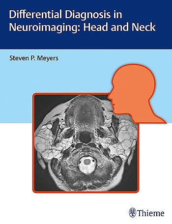 Portada del libro 9781626234758 Differential Diagnosis in Neuroimaging: Head and Neck