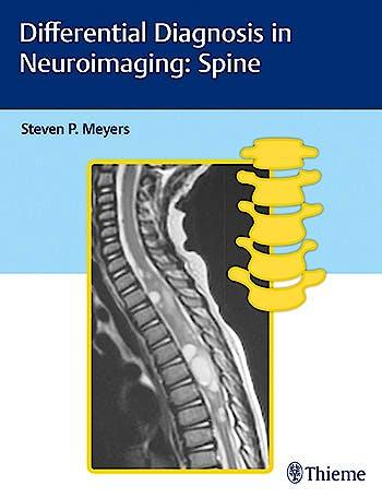 Portada del libro 9781626234772 Differential Diagnosis in Neuroimaging: Spine
