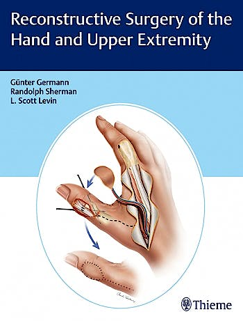 Portada del libro 9781626236011 Reconstructive Surgery of the Hand and Upper Extremity