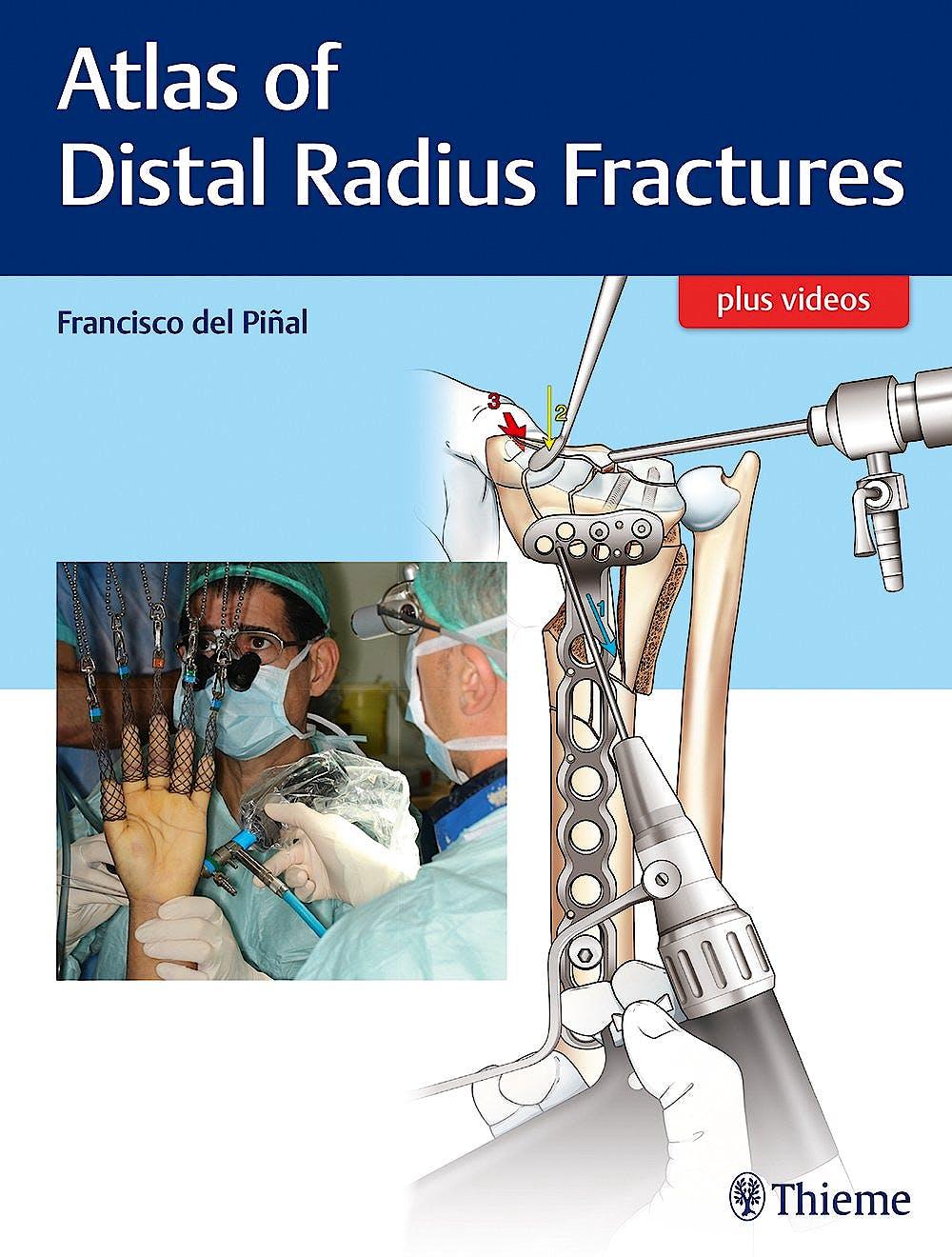 Portada del libro 9781626236790 Atlas of Distal Radius Fractures + Videos