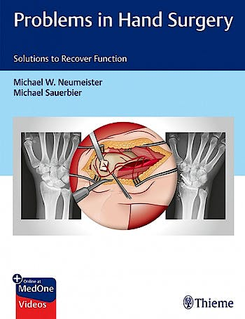 Portada del libro 9781626237094 Problems in Hand Surgery. Solutions to Recover Function
