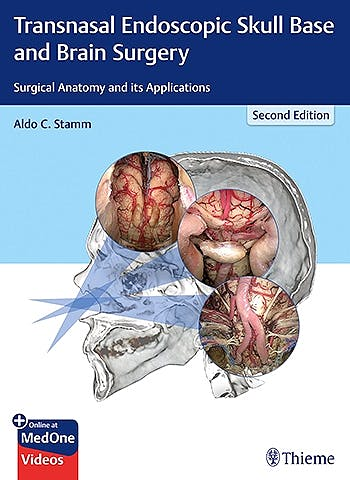 Portada del libro 9781626237100 Transnasal Endoscopic Skull Base and Brain Surgery. Surgical Anatomy and Its Applications