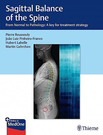 Portada del libro 9781626237322 Sagittal Balance of the Spine. From Normal to Pathology: a Key for Treatment Strategy + Online at MedOne