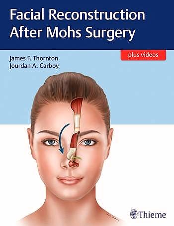 Portada del libro 9781626237346 Facial Reconstruction After Mohs Surgery + Videos