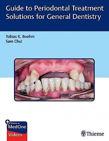 Portada del libro 9781626238008 Guide to Periodontal Treatment Solutions for General Dentistry