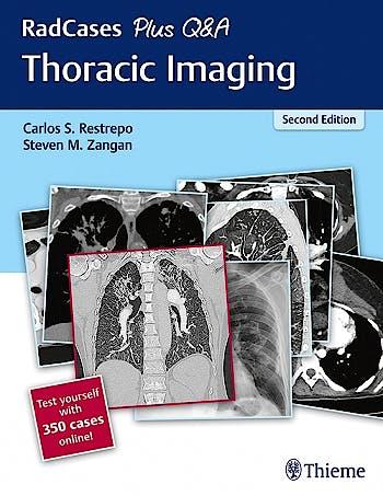 Portada del libro 9781626238145 Thoracic Imaging (RadCases Plus Q&A) + 350 Cases Online