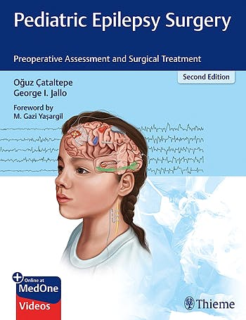 Portada del libro 9781626238169 Pediatric Epilepsy Surgery. Preoperative Assessment and Surgical Treatment + Online at MedOne