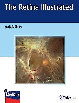 Portada del libro 9781626238312 The Retina Illustrated + Online at MedOne