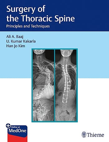 Portada del libro 9781626238558 Surgery of the Thoracic Spine. Principles and Techniques