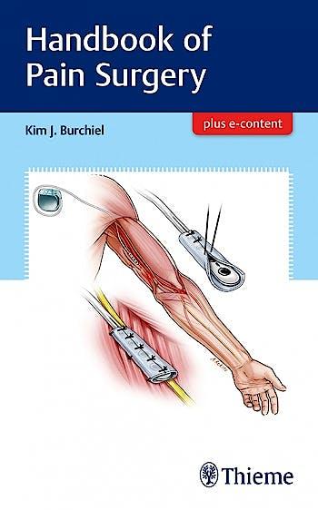 Portada del libro 9781626238718 Handbook of Pain Surgery + E-Content