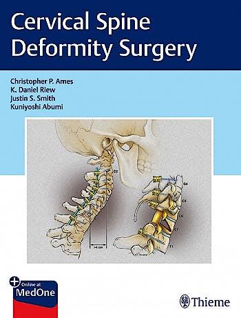 Portada del libro 9781626239012 Cervical Spine Deformity Surgery + Online at MedOne