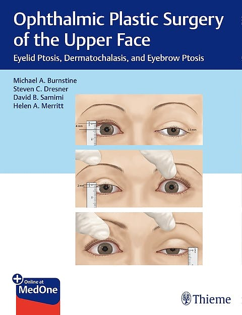 Portada del libro 9781626239210 Ophthalmic Plastic Surgery of the Upper Face. Eyelid Ptosis, Dermatochalasis, and Eyebrow Ptosis