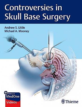 Portada del libro 9781626239531 Controversies in Skull Base Surgery