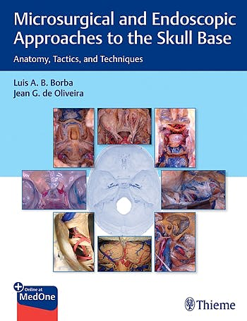 Portada del libro 9781626239661 Microsurgical and Endoscopic Approaches to the Skull Base. Anatomy, Tactics, and Techniques