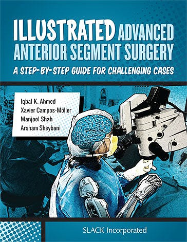 Portada del libro 9781630911843 Illustrated Advanced Anterior Segment Surgery. A Step-by-Step Guide for Challenging Cases