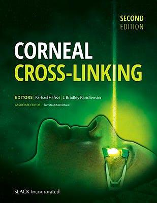 Portada del libro 9781630912109 Corneal Cross-Linking